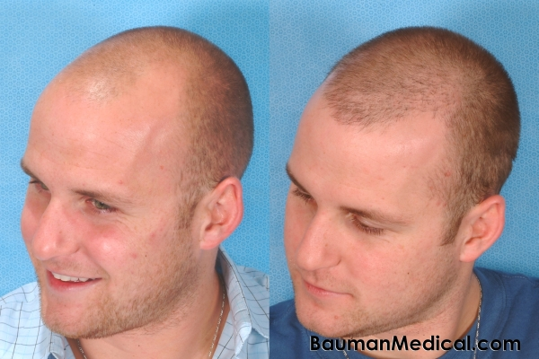 Propecia receding hairline before after