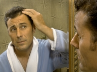 HIS HAIR 192x144 72dpi Male Pattern Baldness