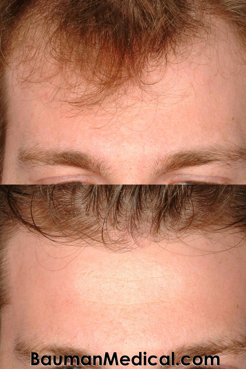 KS Fhairline 800x1200 Artistic Hairline Design