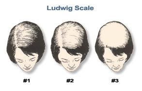 Ludwig Especially for Women