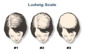 Ludwig Female Hair Loss   Hair Transplants for Women