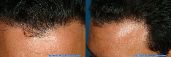 edep hairline x2 576 M.E