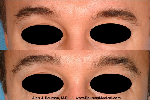Men's Eyebrows Before and After