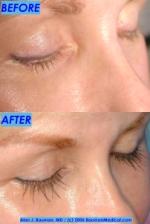 eyelash%20b+a 150x224 Bauman Medical Newsletter Sep 2006
