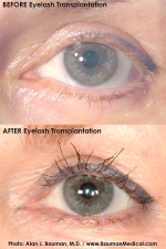eyelash transplant before & after (Alan J. Bauman, M.D.)