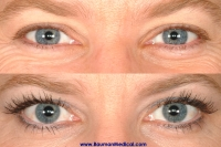 eyelash 200x133 Especially for Women