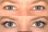 eyelash 200x133 Especially for Women