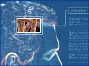 hairRestoreOptions Male Pattern Baldness