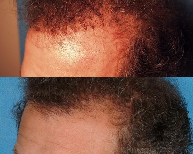hairline%20refinement1 640 Hair Transplant Repair
