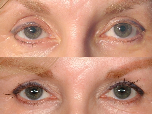 lash%20before after front%20512 Eyelash Transplant and Implant Procedure