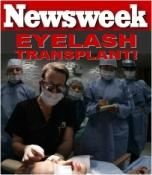 nw cover2 thumb Newsweek  Eyelash Transplantation