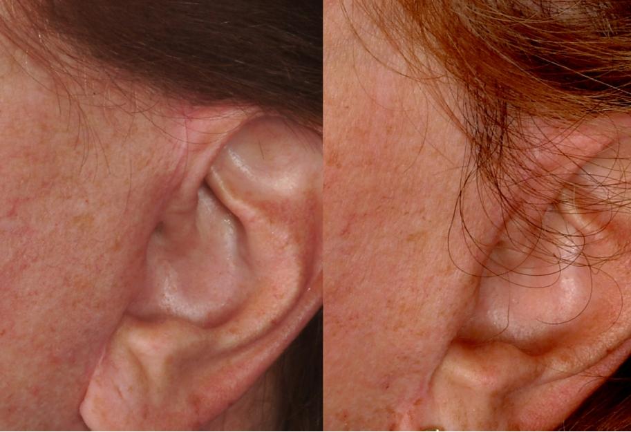 sideburn scar Especially for Women