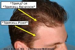 temple anat3 246x163 Male Pattern Baldness
