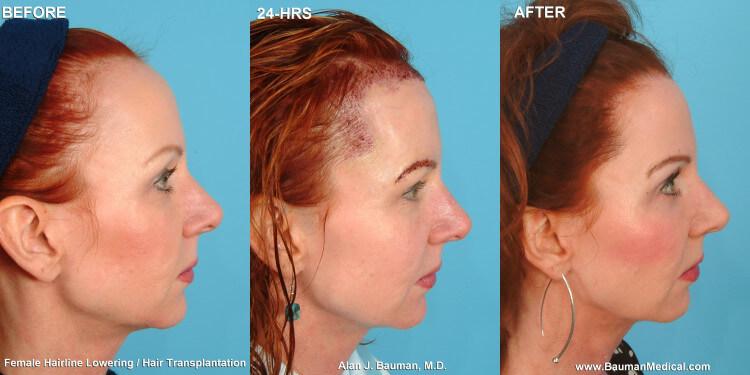 Female Hairline Lowering 183 Bauman Medical Group