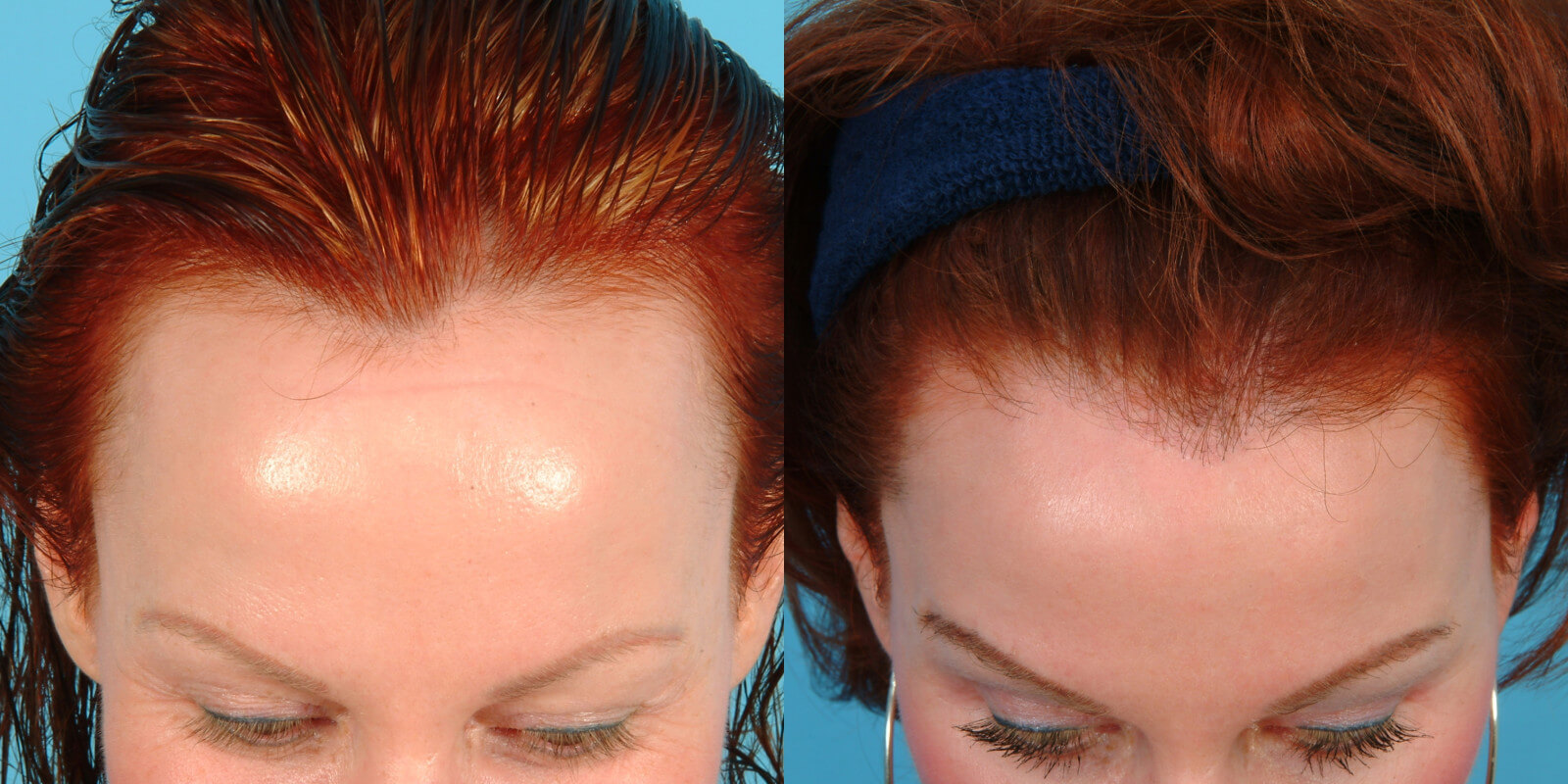 ... hair transplant results women on february 17th 2014 before and after
