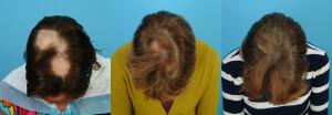 PRP Hair Regrowth in Alopecia Areata - Dr. Alan Bauman