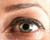 Bauman Eyelash Palm Beach Post Palm Beach Post    Eyelash Transplant (cosmetic)