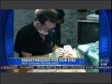 Dr-Bauman-Eyelash-Transplant