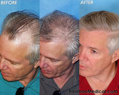 Elderly Male Hair Restoration Before After Paul G. Before and After Hair Transplantation