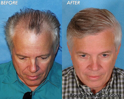 Elderly Male Hair Restoration Front Top Paul G. Before and After Hair Transplantation