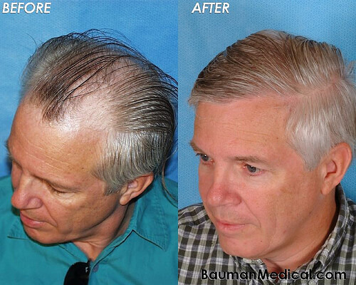 Elderly Male Hair Restoration Side Paul G. Before and After Hair Transplantation