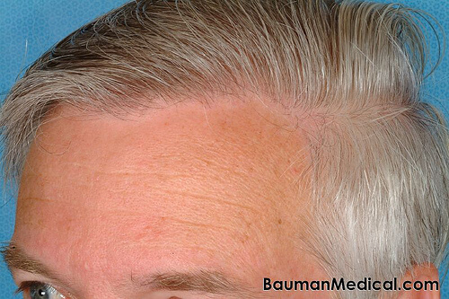 Elderly Male Hairlne Paul G. Before and After Hair Transplantation