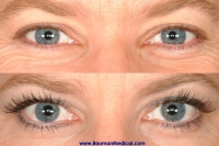 Eyelash Latisse Before After Front Eyebrow, Eyelash, Scars, etc. (special cases)
