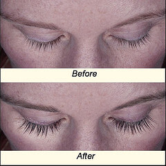 Eyelash Latisse Before After Eyebrow, Eyelash, Scars, etc. (special cases)