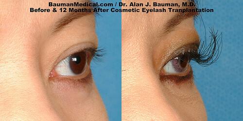 Eyelash Transpant Before After Open Free Eyelash Transplant