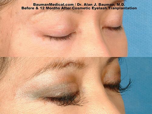 Eyelash Transplant Before After Closed Free Eyelash Transplant