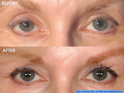 Eyelash-Transplant-Female-Elderly-Front