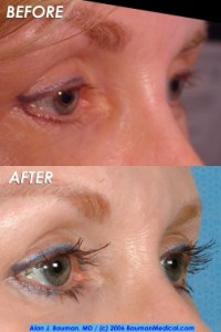 Eyelash-Transplant-Female-Elderly-Side