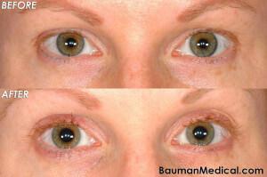 Eyelash Transplant Female Front 300x199 Eyelash Transplant Patient Results