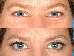 Eyelashes Befor After Latisse Eyelash Transplant and Implant Procedure