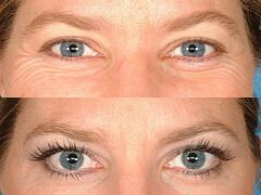 Eyelashes-Befor-After-Latisse