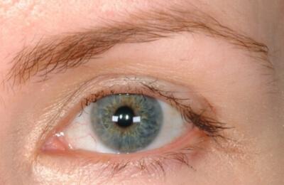 Eyelashes-Damaged