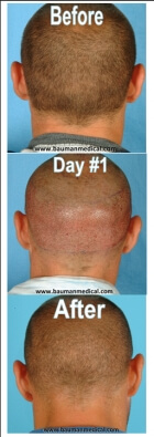 FUE-hair-donor-areas-before-after