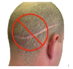 no linear scar fue hair transplant