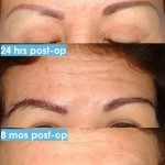 Female Eyebrow Transplant 150x150 Eyebrow Transplant Procedure