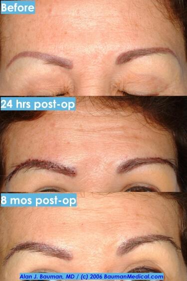 Female Eyebrow Transplant Eyebrow Patient Profiles