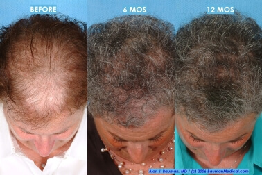 Female Hair Transplantation Before After Joan Female Hair Transplant