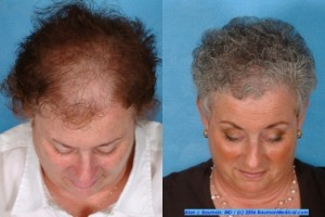 Female Hair Transplantation Front Top 300x200 Joan Female Hair Transplant