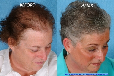 Female Hair Transplantation Side Left Joan Female Hair Transplant