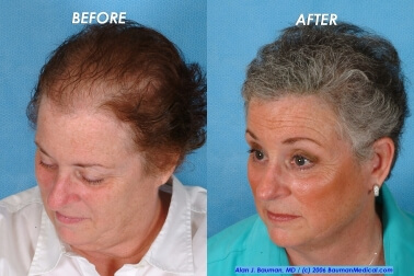 Female Hair Transplantation Side Right Joan Female Hair Transplant