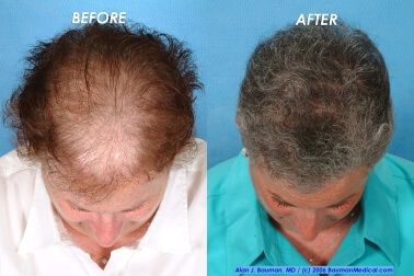 Female Hair Transplantation Top Joan Female Hair Transplant