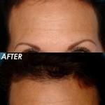 Female Hair line Lowering 150x150 Female Hairline Lowering   Hair Transplant
