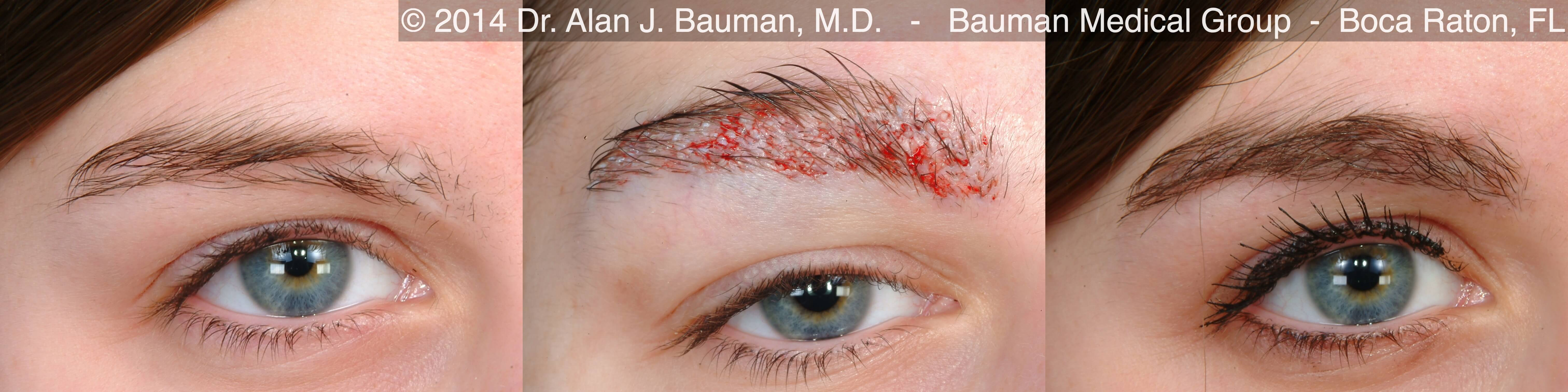 Eyebrow Transplantation Special Cases Bauman Medical Group