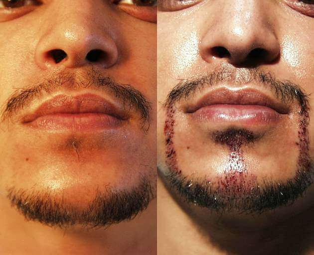 Goatee Hair Transplant Eyebrow, Eyelash, Scars, etc. (special cases)