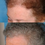 Hair Transplant female before after left side 150x150 Joan Female Hair Transplant