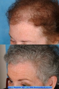 Hair Transplant female before after left side 200x300 New York Times